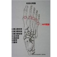 足趾MP関節の違和感     金沢市    腰痛    整体院   樹