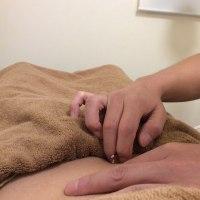 秋バテと鍼灸治療