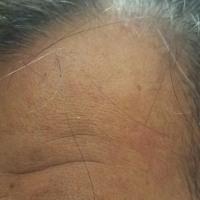 カロヤン プログレEX 効果を実証 ブログ
