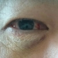 網膜剥離 7回目の手術後 最初の受診です