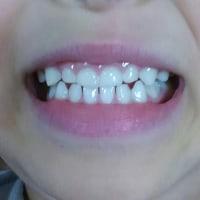 歯並び改善に向けて矯正スタート!