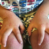手足口病との戦い