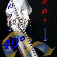 右肘関節の複雑骨折から2回目の手術後