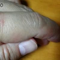 左手人差し指に出来る湿疹。