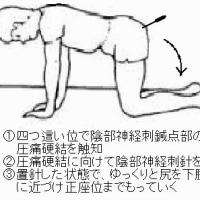 陰部神経刺針を効果的にする刺針体位の工夫