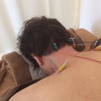 群発頭痛と鍼灸治療