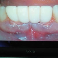 インプラントで直ぐに歯が入る、正真正銘の即時荷重インプラントを推進しています。