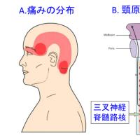 頸原性頭痛の臨床像は従来の報告とは異なるようだ