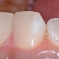歯を削らない治療・・・