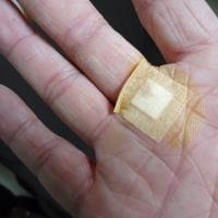 インフルエンザB型 & ばね指(弾発指)