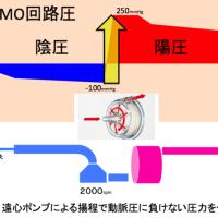 ECMOの回路をクランプするときは脱血側?送血側?