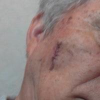 これが手術痕です。