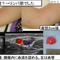 肘の皮下腫瘍:粉瘤?