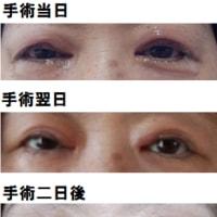 眼瞼下垂の手術を終えました