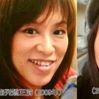 歯列矯正終わって2年過ぎてた!