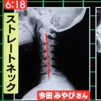首の後ろの筋肉異常(スマホ首)で、新型うつに・追記あり