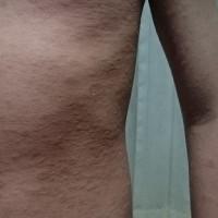 湿疹の原因はなんだろか、ストレスから?