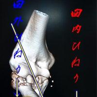 肘関節の可動域制限の原因