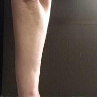 ㊴少しつながった|橈骨遠位端骨折変形治癒術後45日目