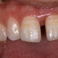 歯周病でも見た目が気になる方必見 歯周病と審美歯科のご紹介 無料カウンセリングの神田ふくしま歯科
