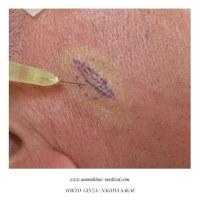 粉瘤(皮様嚢腫)は、最も多く見られる良性のできもの。形成外科でのメリット(名古屋栄、東京銀座)