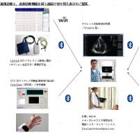 超音波画像診断機能に他の診断機能を追加できます