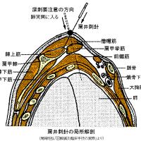 肩甲上部と側頸部のコリへの解剖学的針灸と坂井流横刺