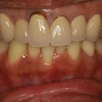 前歯の差し歯の長さが左右でちがう場合の治療方法