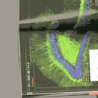 ゼロ磁場 西日本一 氣パワー・開運引き寄せスポット これが海馬の神経細胞美しい(5月14日)