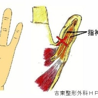 指神経知覚麻痺の針灸治験