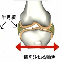 膝半月板亜脱臼の治療 Ver.1.2