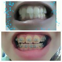 変わってきた歯並び[画像有り]
