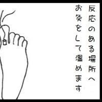 【生理前や生理期間中に首が痛くなる】首肩が突っ張るなど足裏のこりへお灸