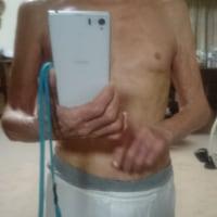 92才の介護ダイアリー、OILマッサージは、リンパ液を活性化する?湿疹赤色が取れ、全体的に肌色が回復気配、劇的!