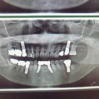 歯周病治療しない者はインプラントするべからず