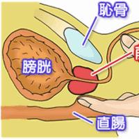 前立腺がん治療
