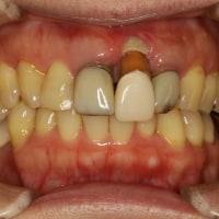 30歳以上で差し歯治療を行っている方には朗報です。差し歯の歯茎が下がってしまった時の治療法