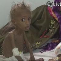 イエメン  トランプ大統領の初軍事作戦  終わらぬ内戦で危機に瀕する住民生活と子供の命