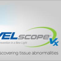 口腔がん検診(VELscope)