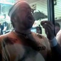 ゴキブリ大食いで男性が死亡・アメリカ
