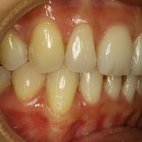 歯茎が下がってしまった場合は歯ぐきの再生治療で歯の形も変わります.
