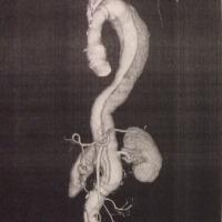大動脈が全部人工血管になった写真