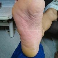 足裏に出来た大きいタコと若石足部反射区療法