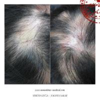 円形脱毛症で悩む多くの患者様がにしやまクリニックグループの光線療法を選ぶ理由。東京銀座、名古屋栄