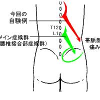 右急性側腹痛の自験例(中部胸椎多裂筋由来の激痛)