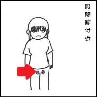 【生理前・生理中の股関節・膝が痛いを解消する】ツボに鍼(はり)灸