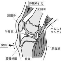 症例集 【オスグッド・シュラッター病のお話】