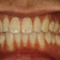 あなたの歯茎が下がってしまうことがあります。