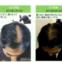 髪が生える波動