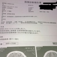【癌性リンパ管症】になったった…